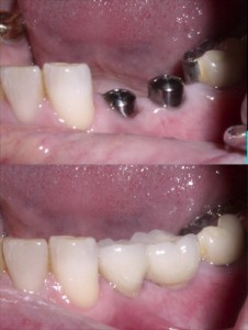 Dental Implants in Chesapeake - Before and After Photos