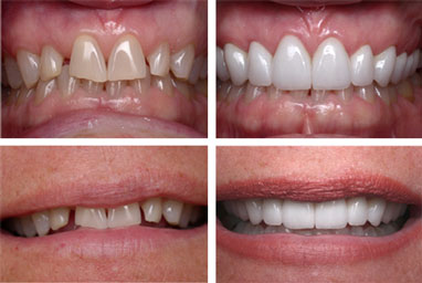Cosmetic-Dentist-in-Chesapeake-VA-2