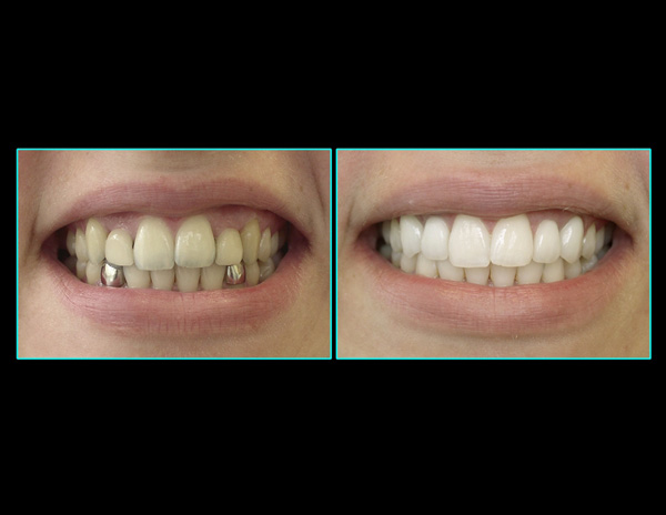 Dental Implants and Crown