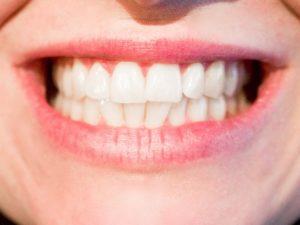 Cosmetic Dentist in 23322